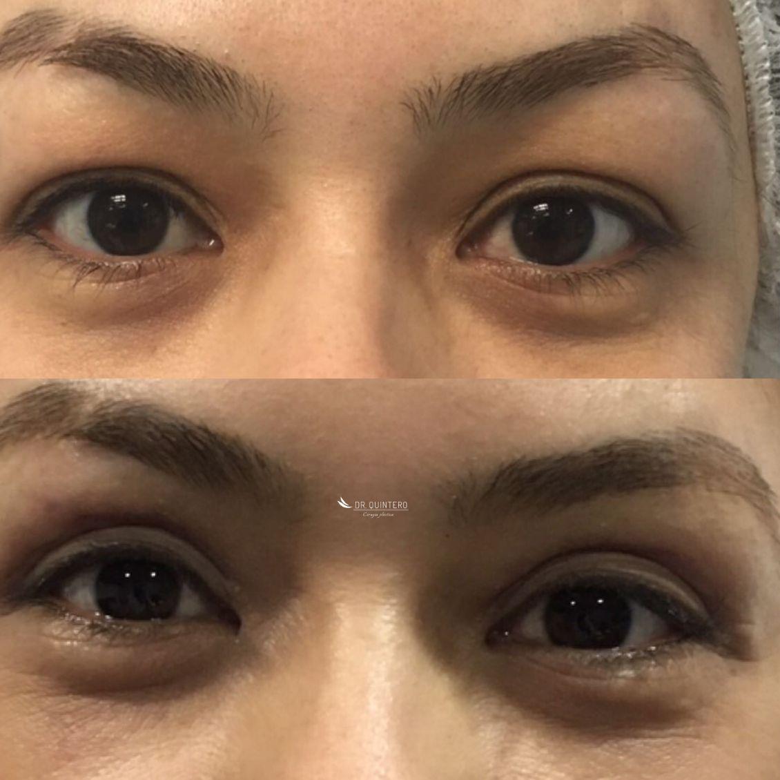 Blefaroplastia antes y despues - caso 3