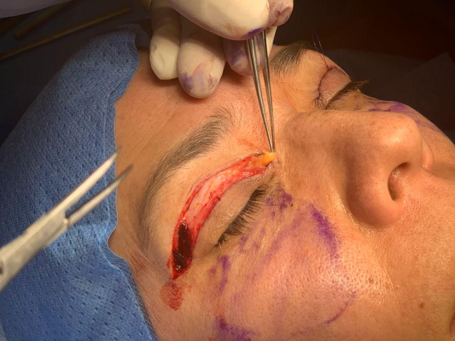 Intervencion Blefaroplastia paso 5