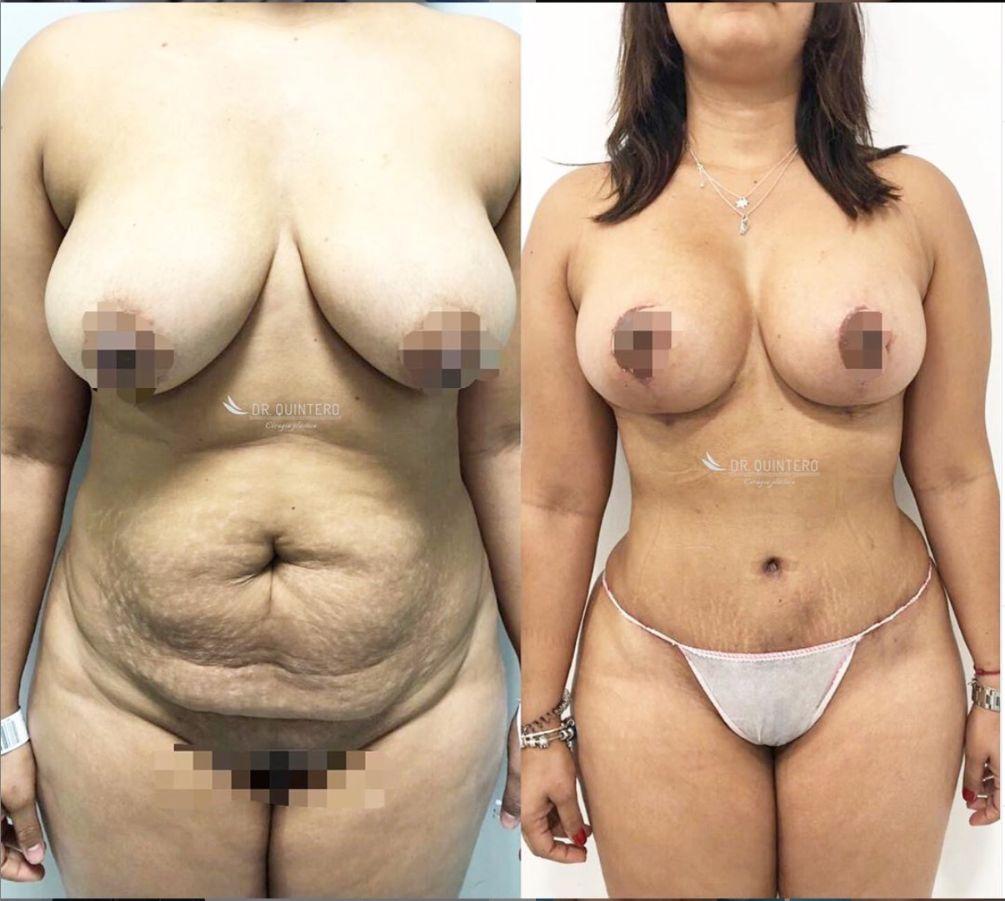 Antes y despues abdominoplastia caso 1