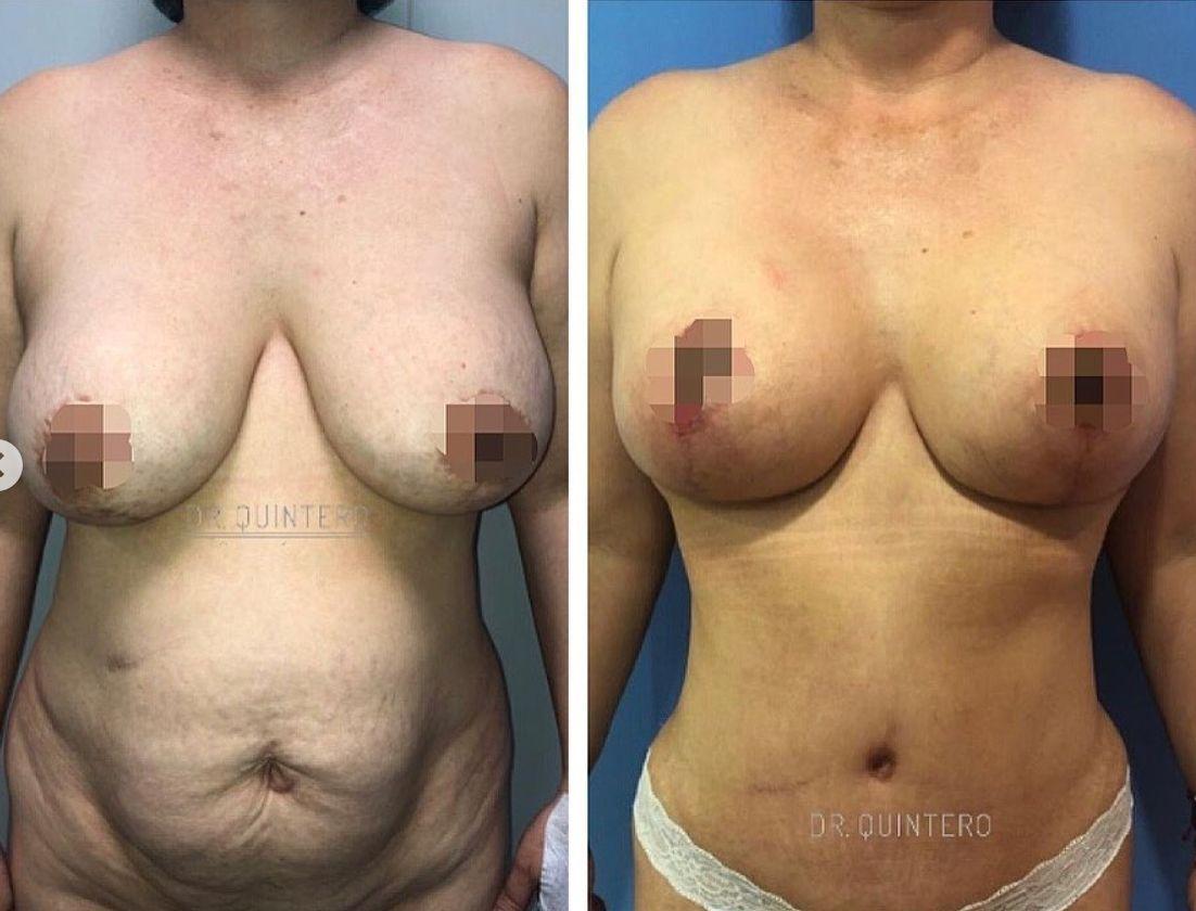 Antes y despues abdominoplastia caso 3