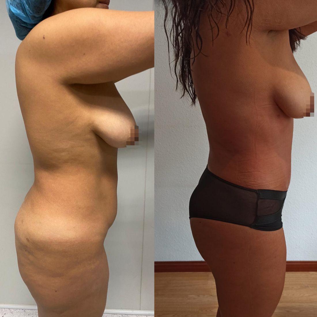 Antes y despues abdominoplastia caso 4