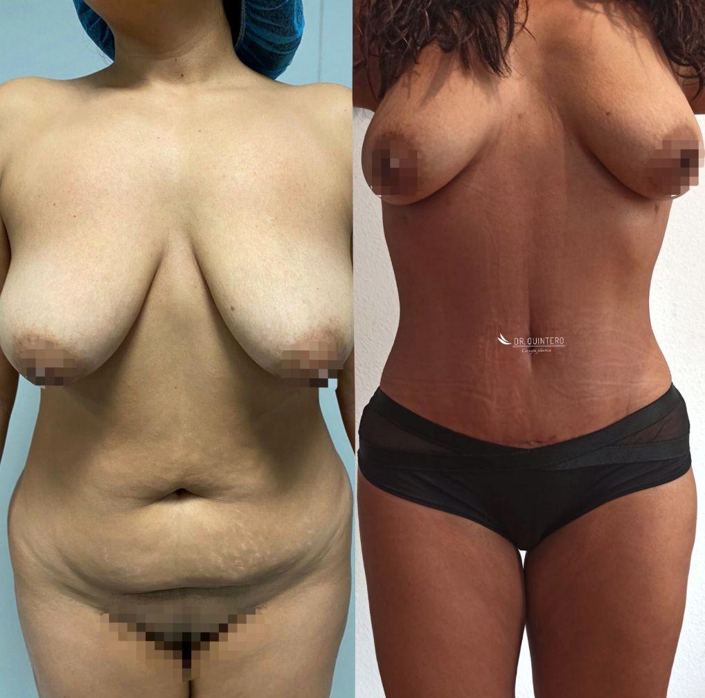 Antes y despues abdominoplastia caso 5