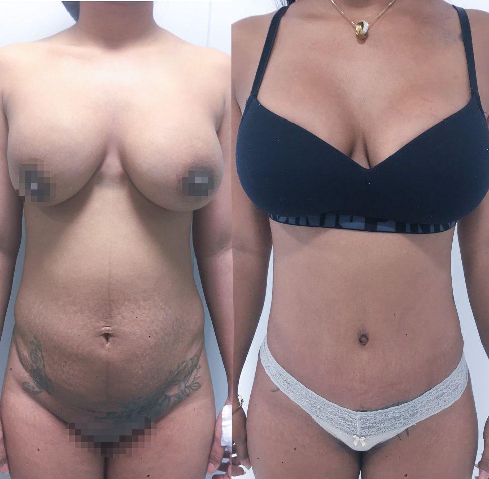 Antes y despues abdominoplastia caso 6