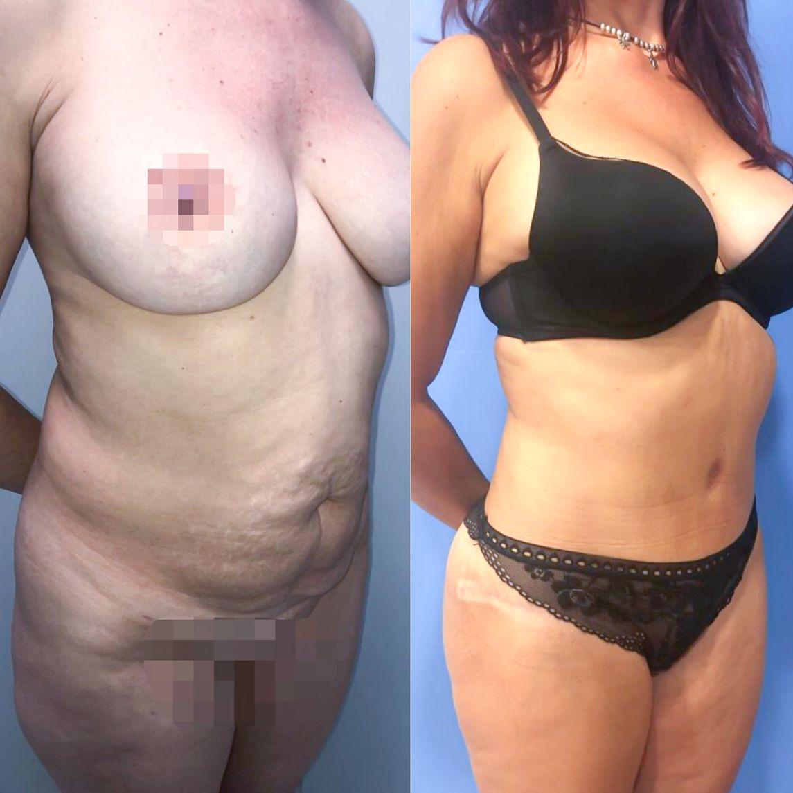 Antes y despues abdominoplastia caso 7