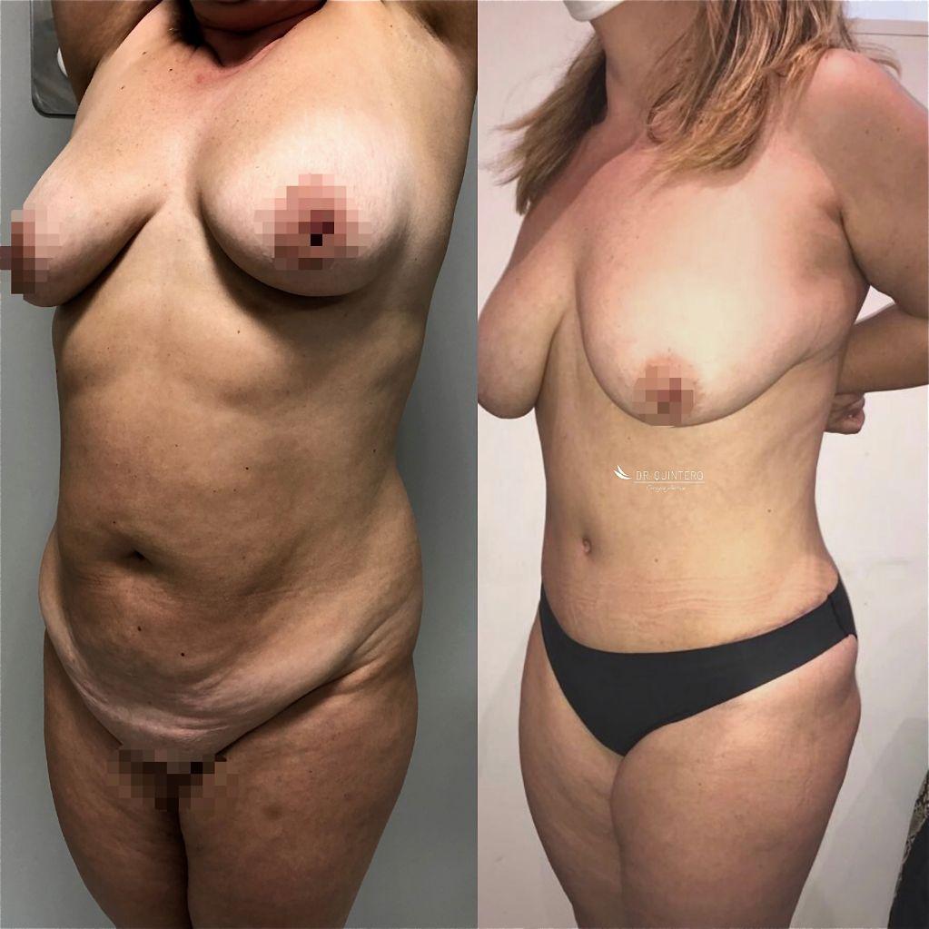 Antes y despues abdominoplastia caso 8