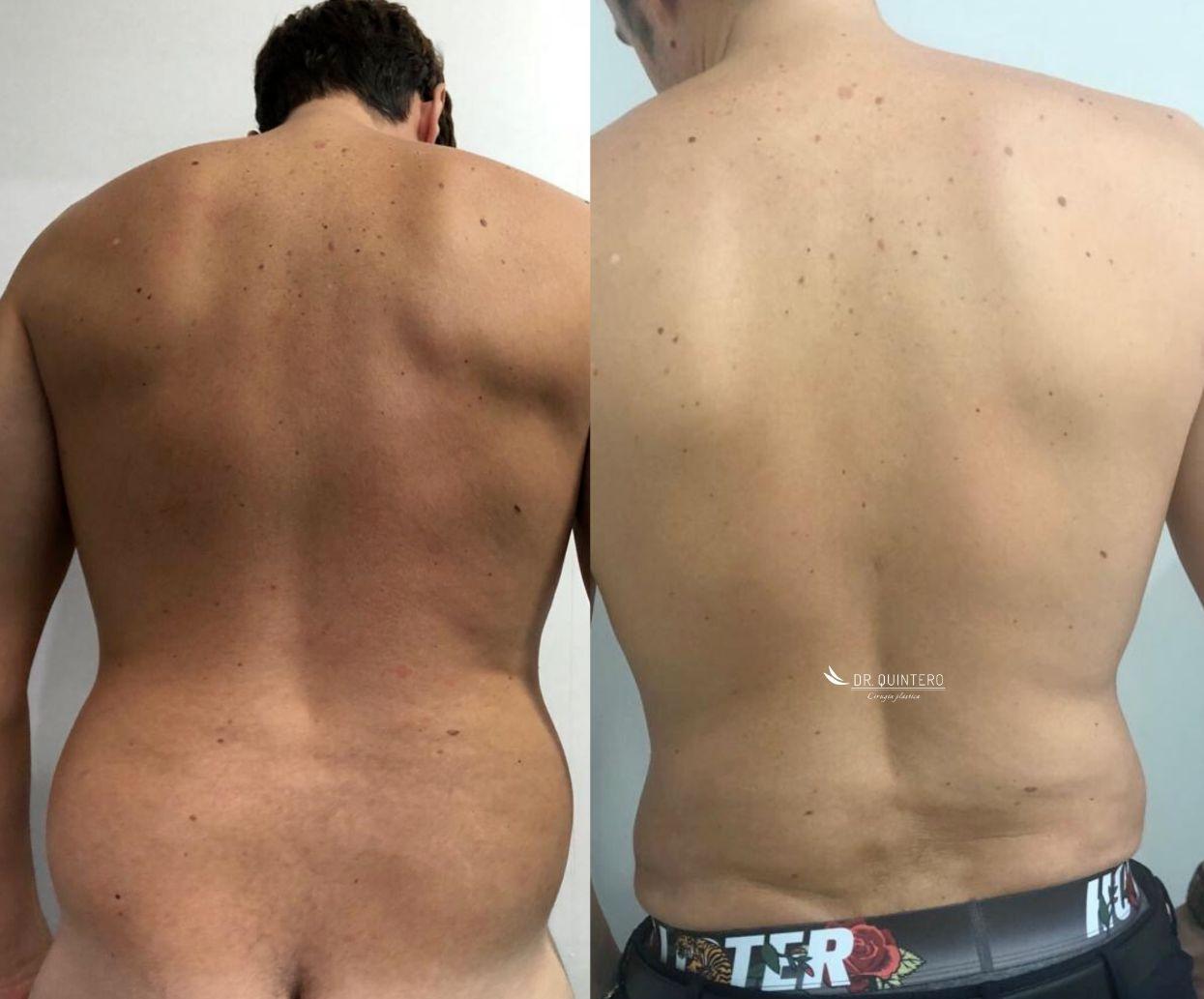 Antes y despues liposuccion de alta definicion caso 1