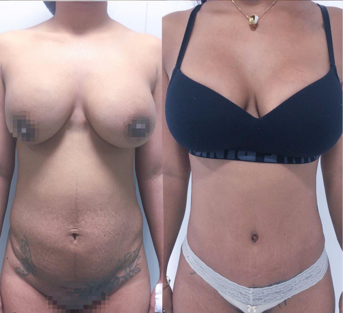 Antes y despues liposuccion de alta definicion caso 10