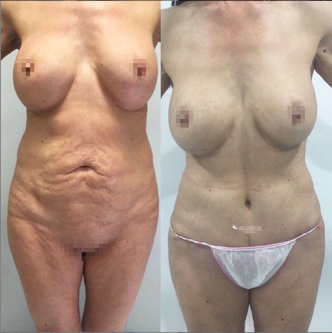 Antes y despues liposuccion de alta definicion caso 12