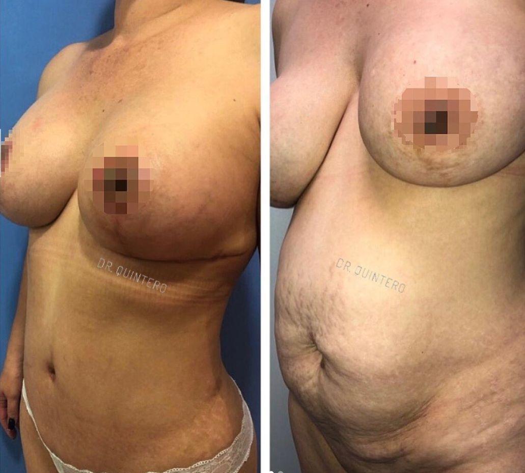 Antes y despues liposuccion de alta definicion caso 15