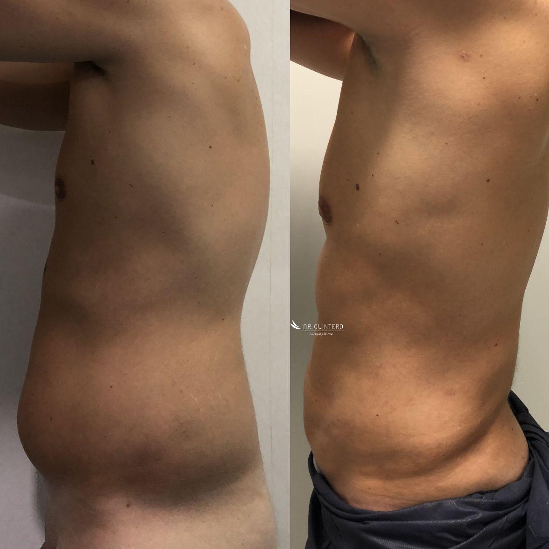 Antes y despues liposuccion de alta definicion caso 17