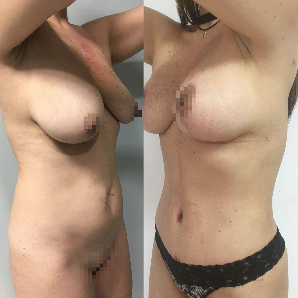 Antes y despues liposuccion de alta definicion caso 18