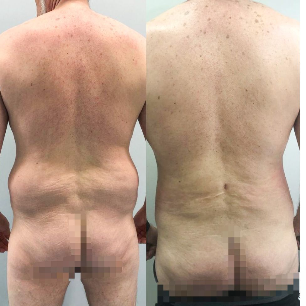 Antes y despues liposuccion de alta definicion caso 19