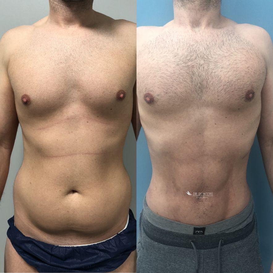 Antes y despues liposuccion de alta definicion caso 2