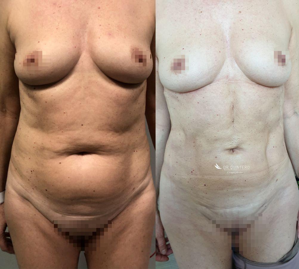 Antes y despues liposuccion de alta definicion caso 20