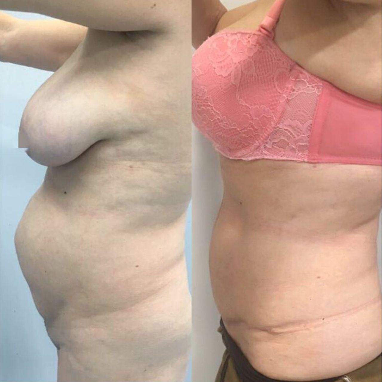 Antes y despues liposuccion de alta definicion caso 4
