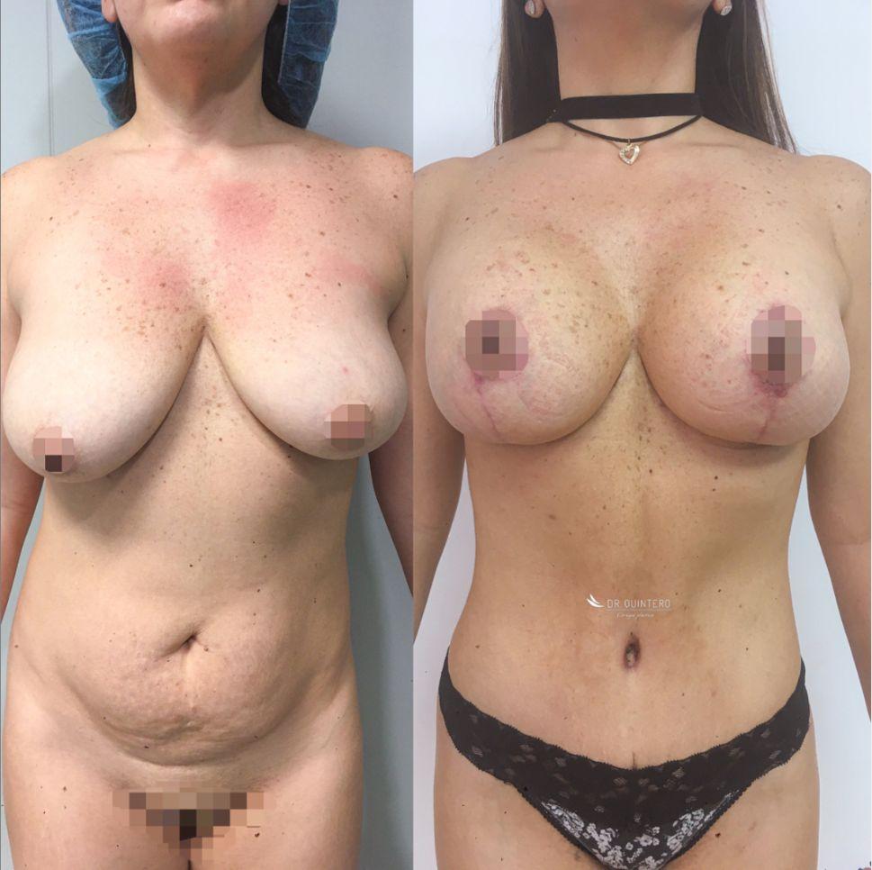 Antes y despues liposuccion de alta definicion caso 5