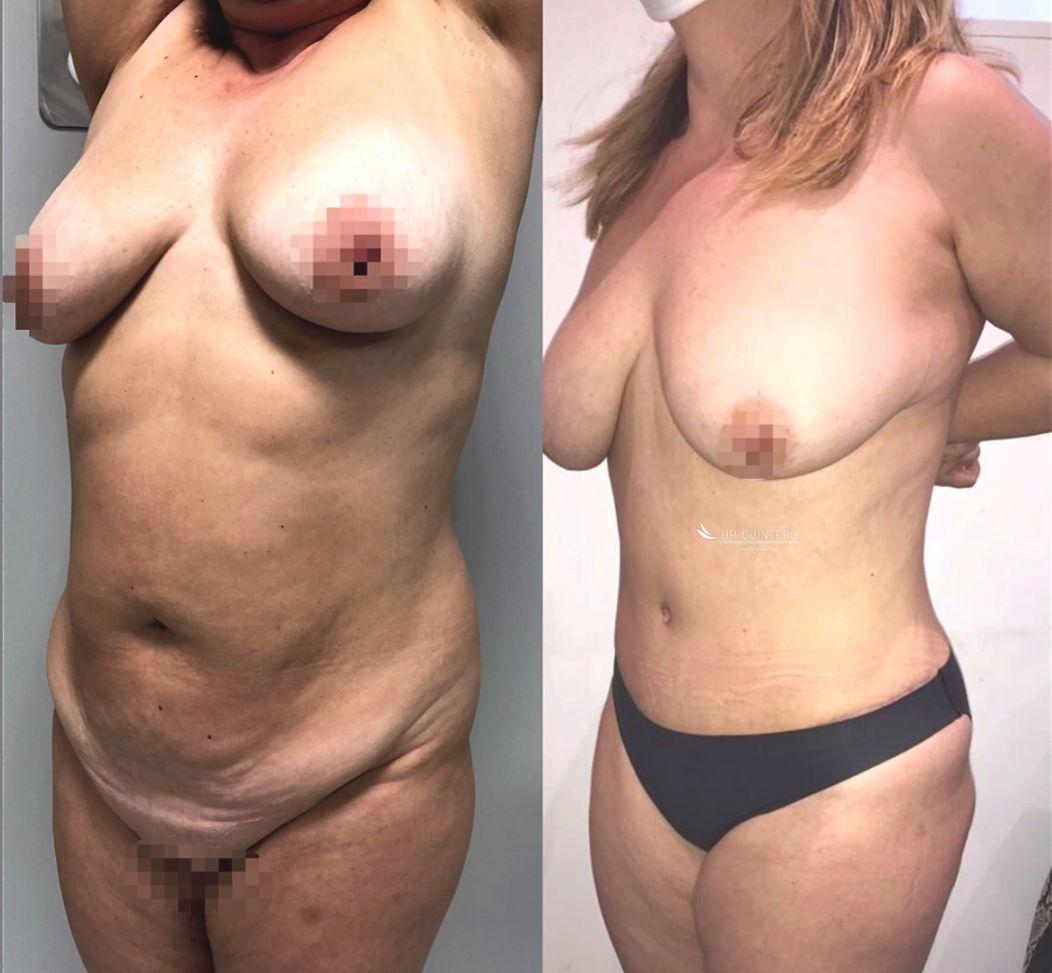 Antes y despues liposuccion de alta definicion caso 6