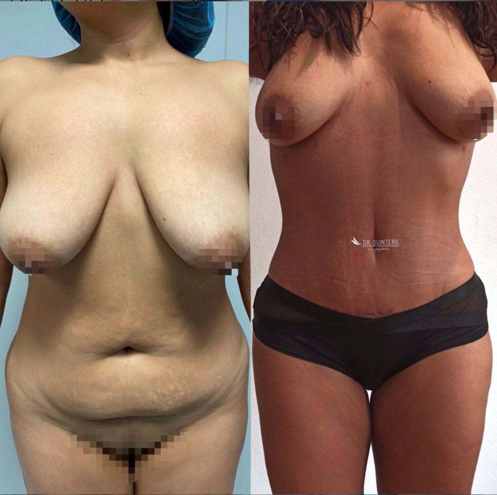 Antes y despues liposuccion de alta definicion caso 7
