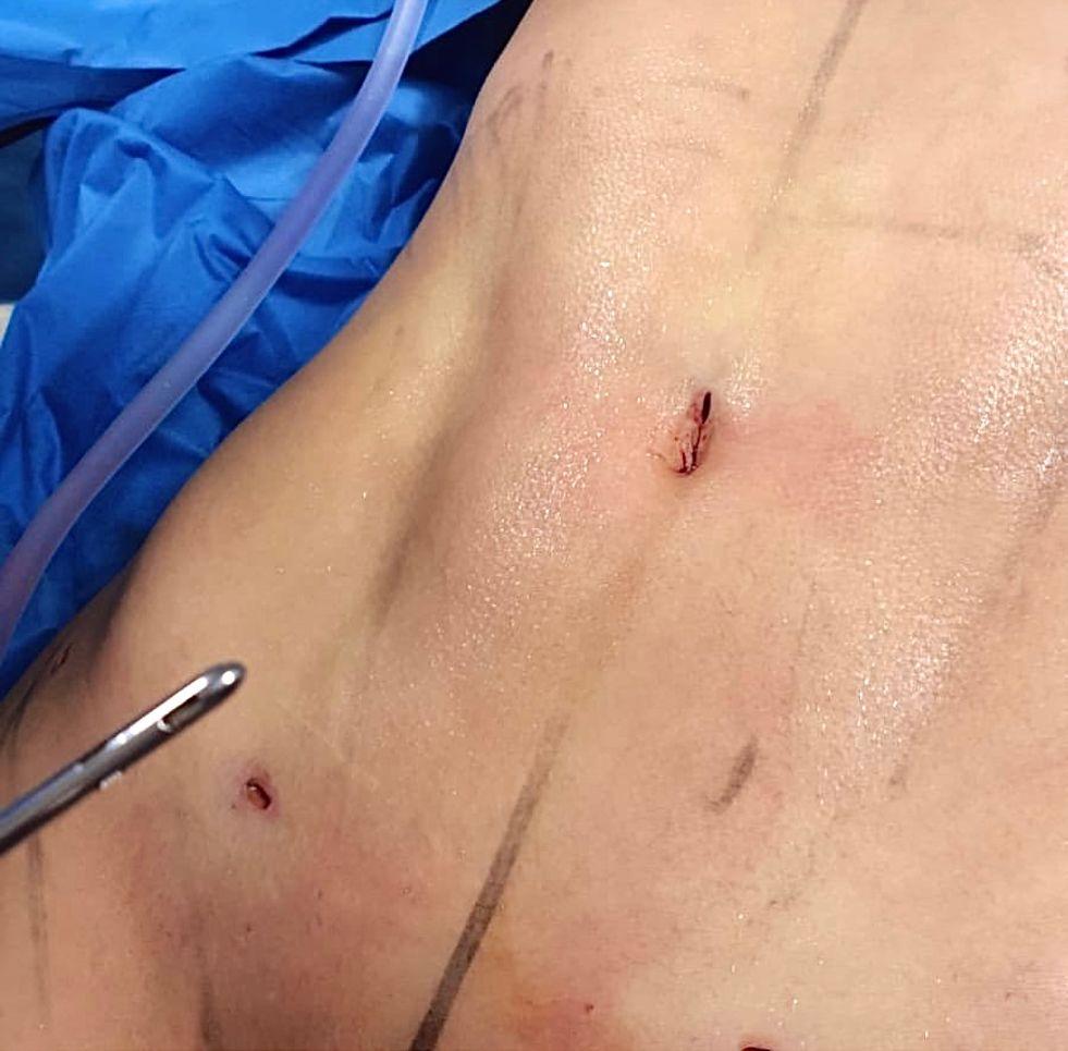 Lipo definicion abdominales caso 6