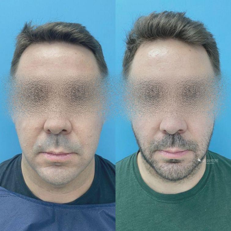 Antes y después Bichectomía Madrid