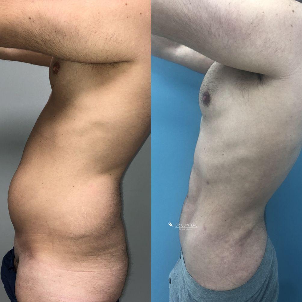 Antes y despues lipos VASER