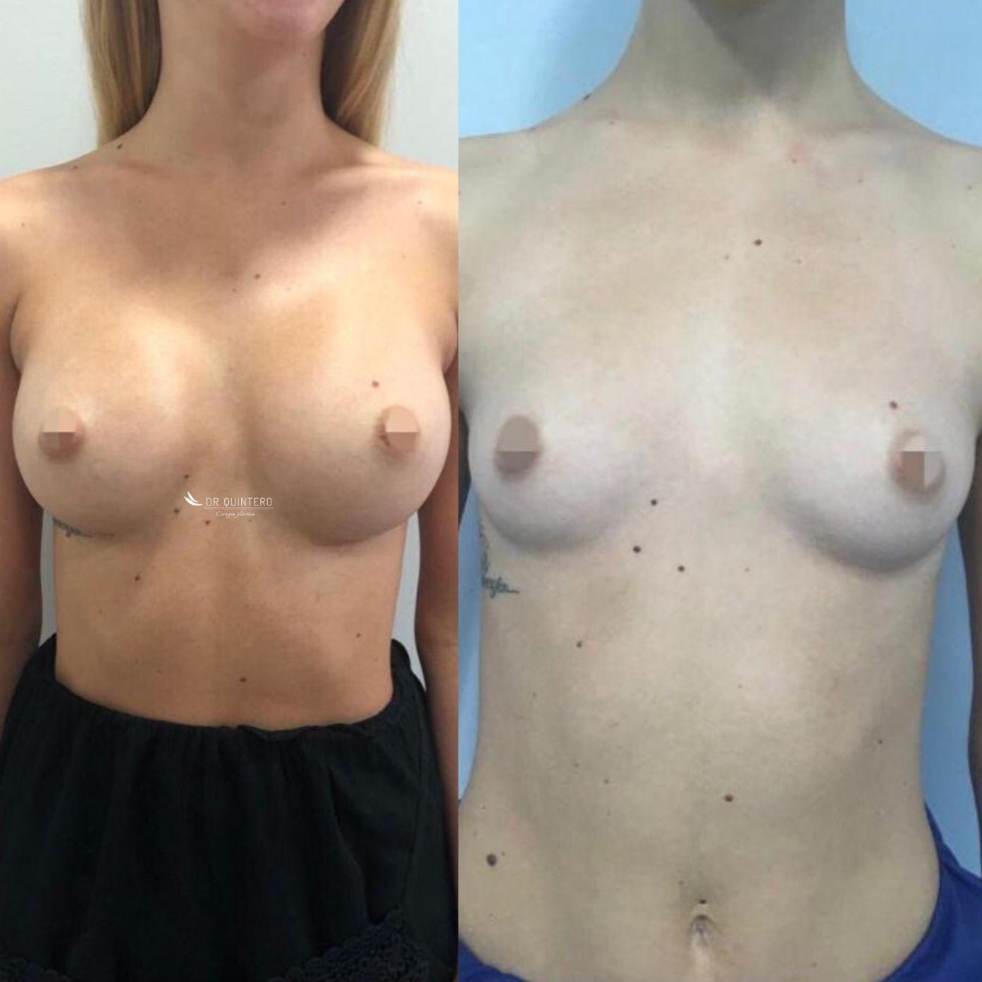 Aumento de pecho mamoplastia antes y despues
