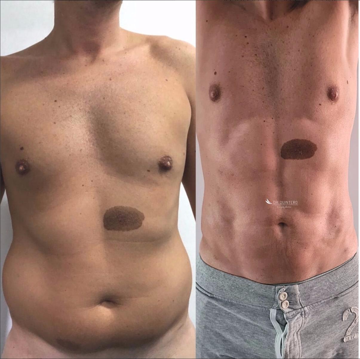 Marcacion abdominal antes y despues
