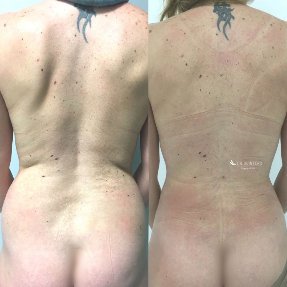 Antes y despues liposuccion alta definicion