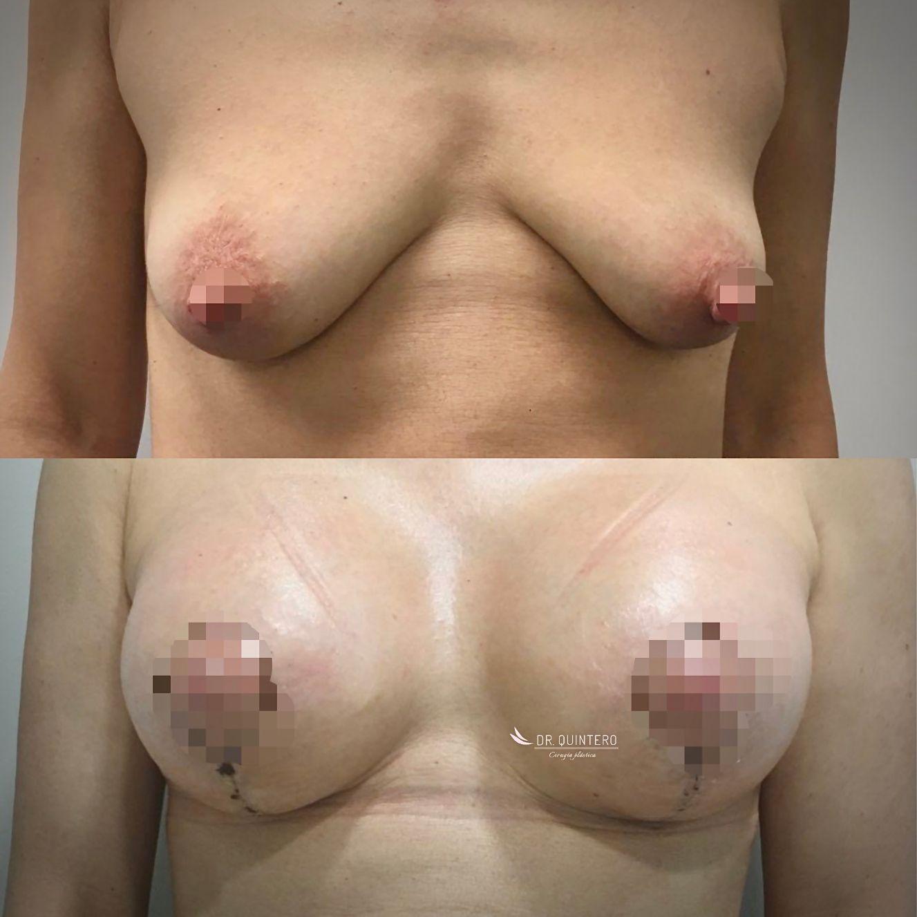 Correccion de mama tuberosa antes y despues