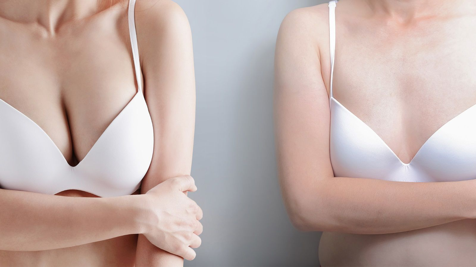 Mastopexia sin protesis