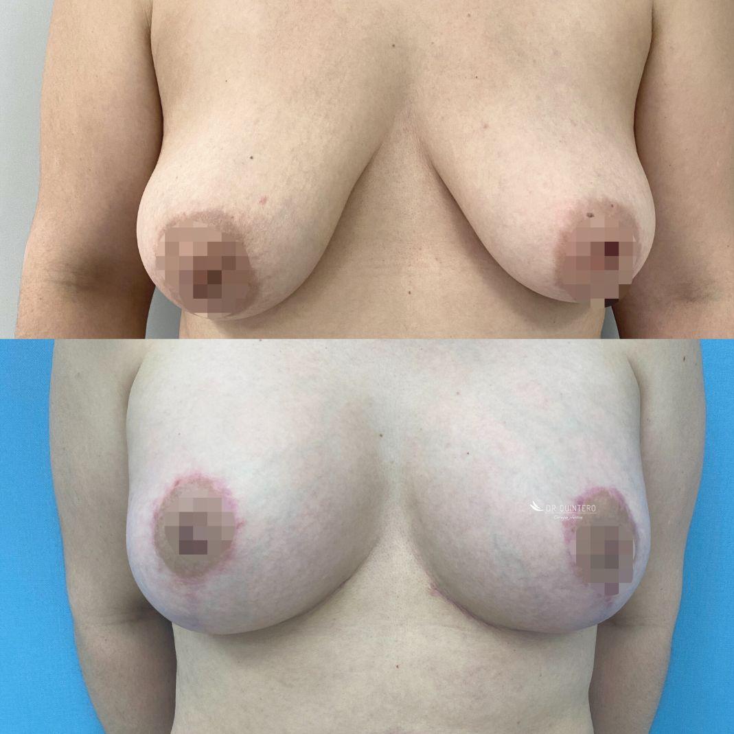 Pexia mamaria antes y despues