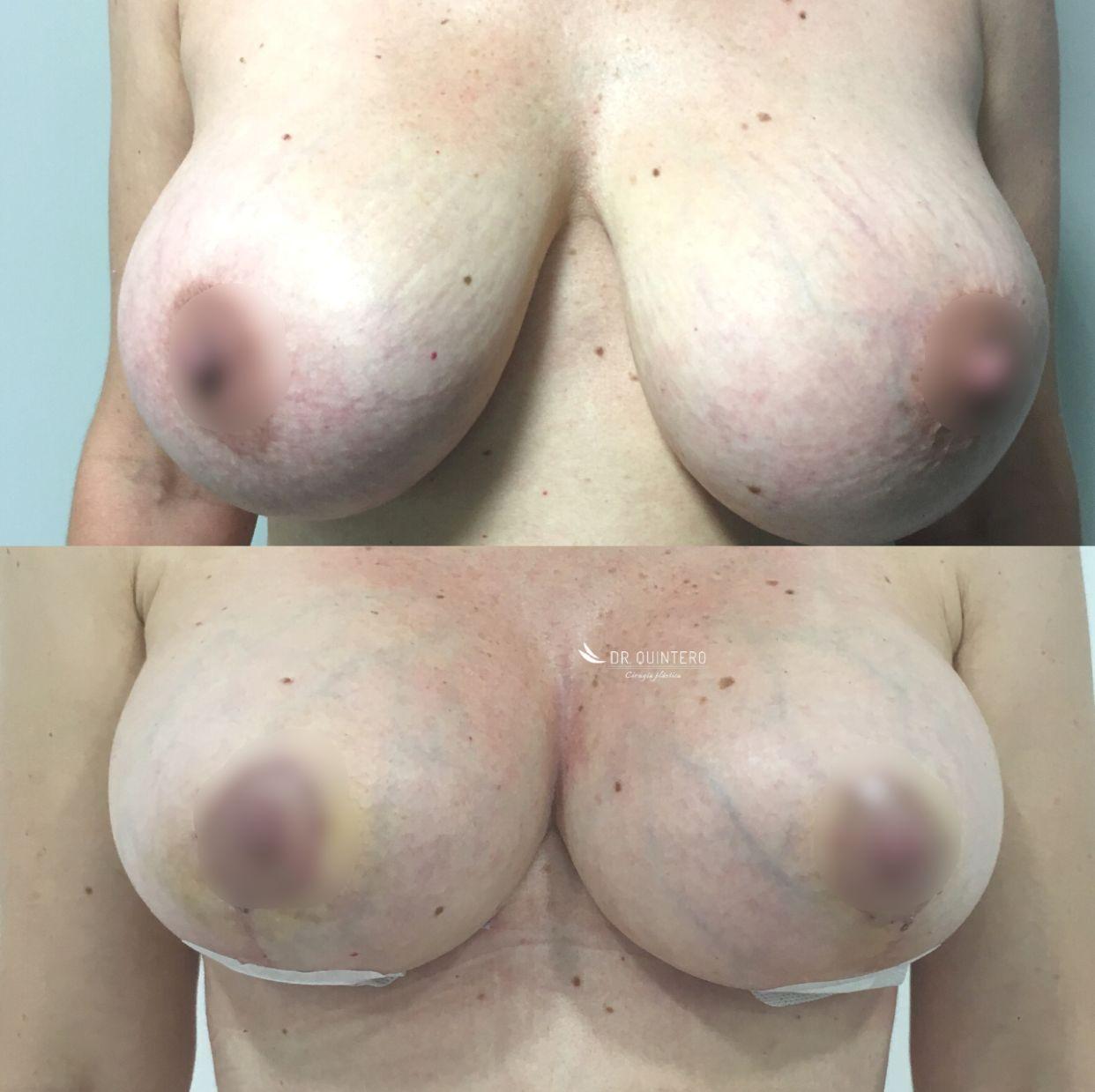 Recambio de protesis mamaria