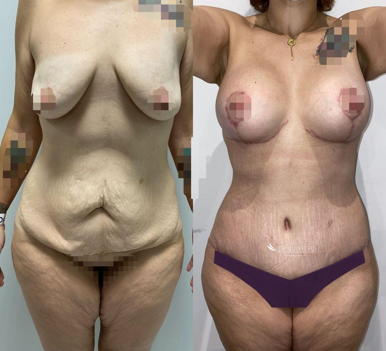 Abdominoplastia antes y despues - 1