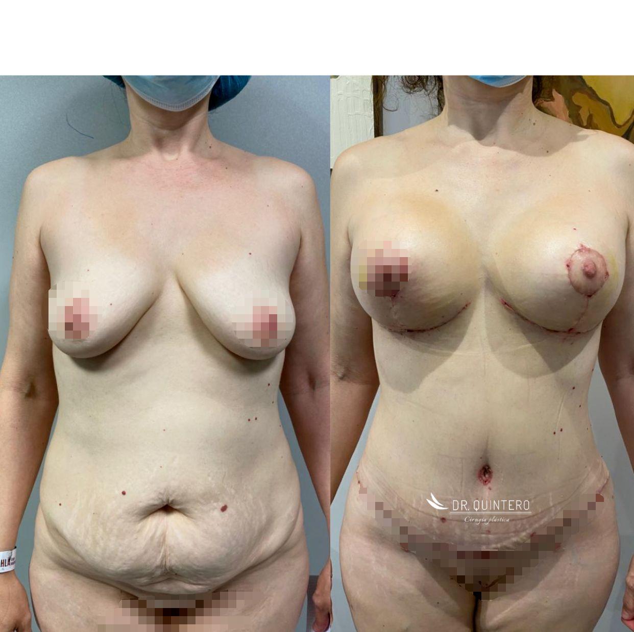 Abdominoplastia antes y despues - 2