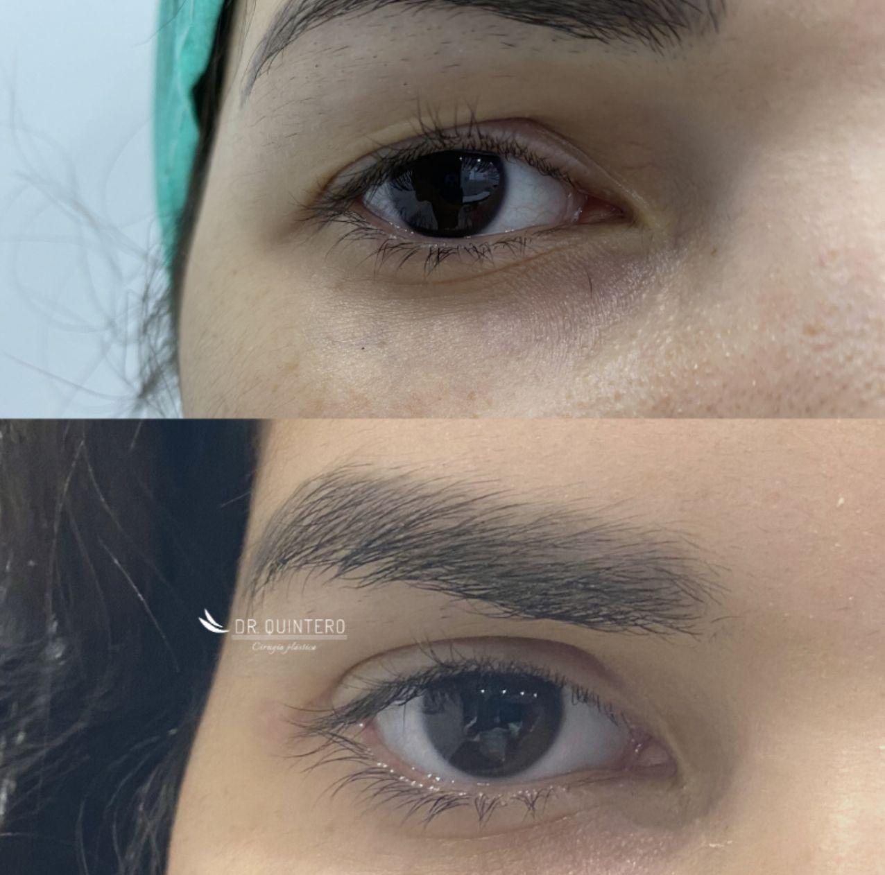 Blefaroplastia antes y después