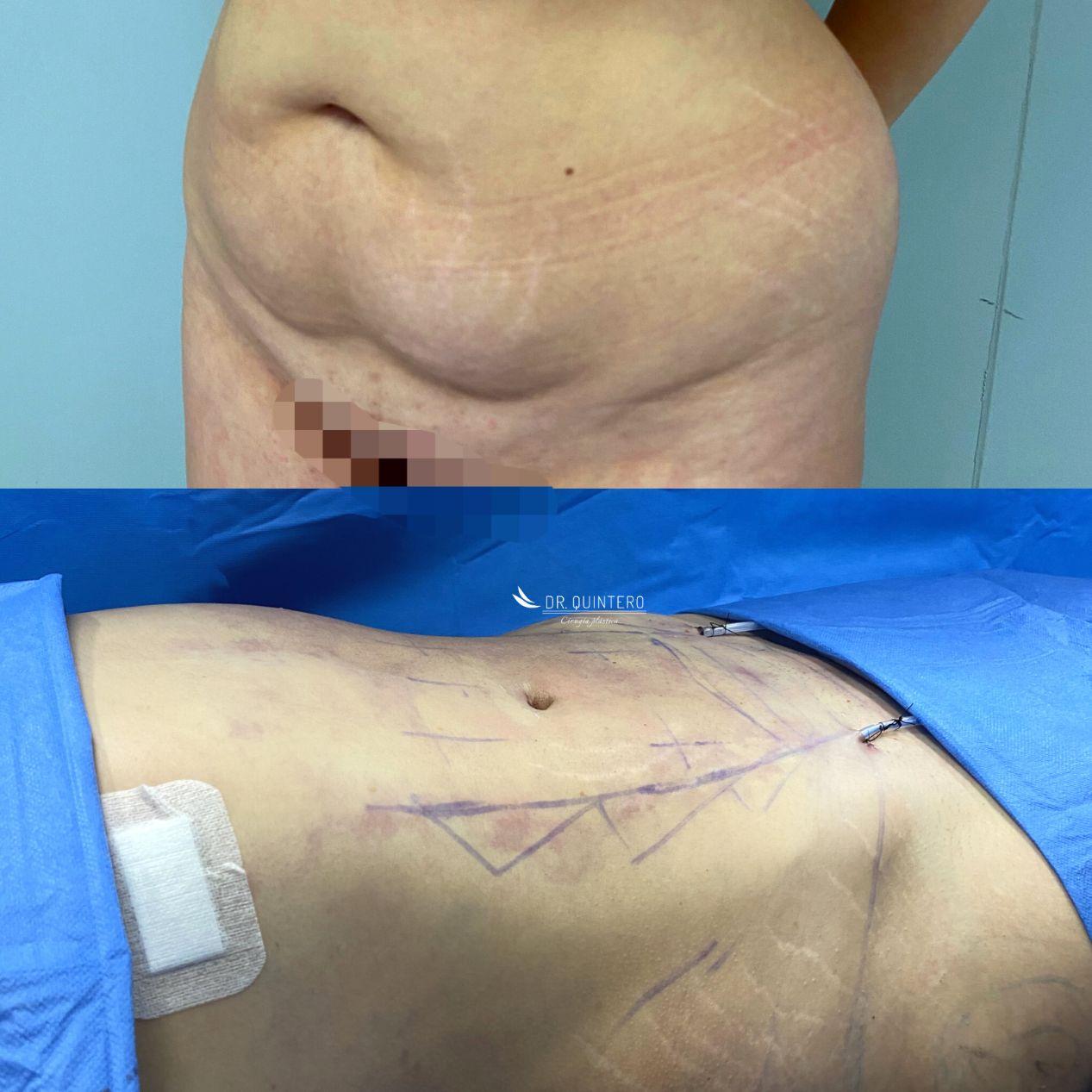 Liposucción HD antes y después