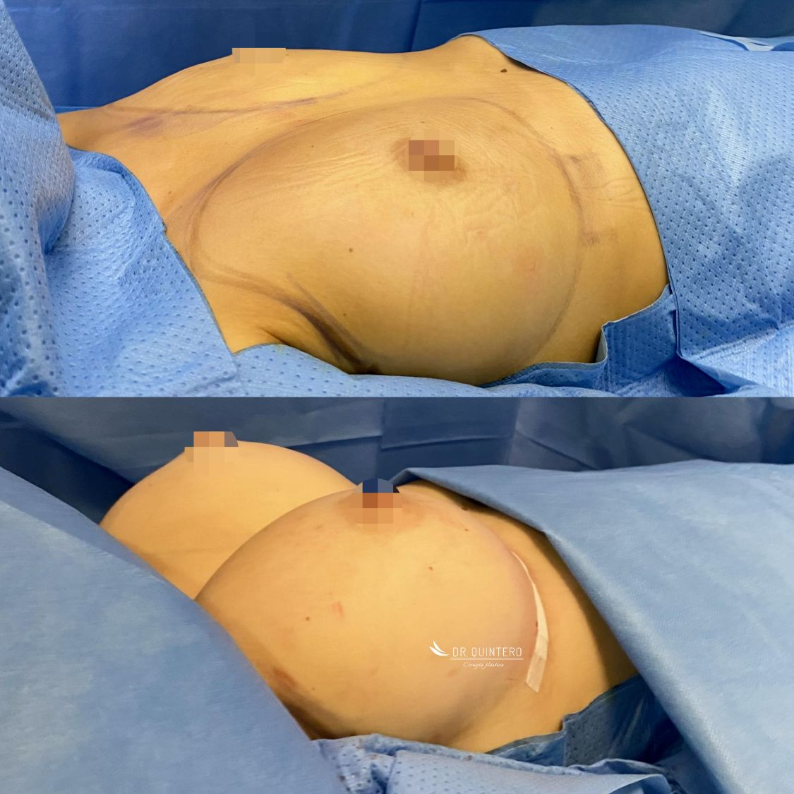 mamoplastia de aumento antes y después