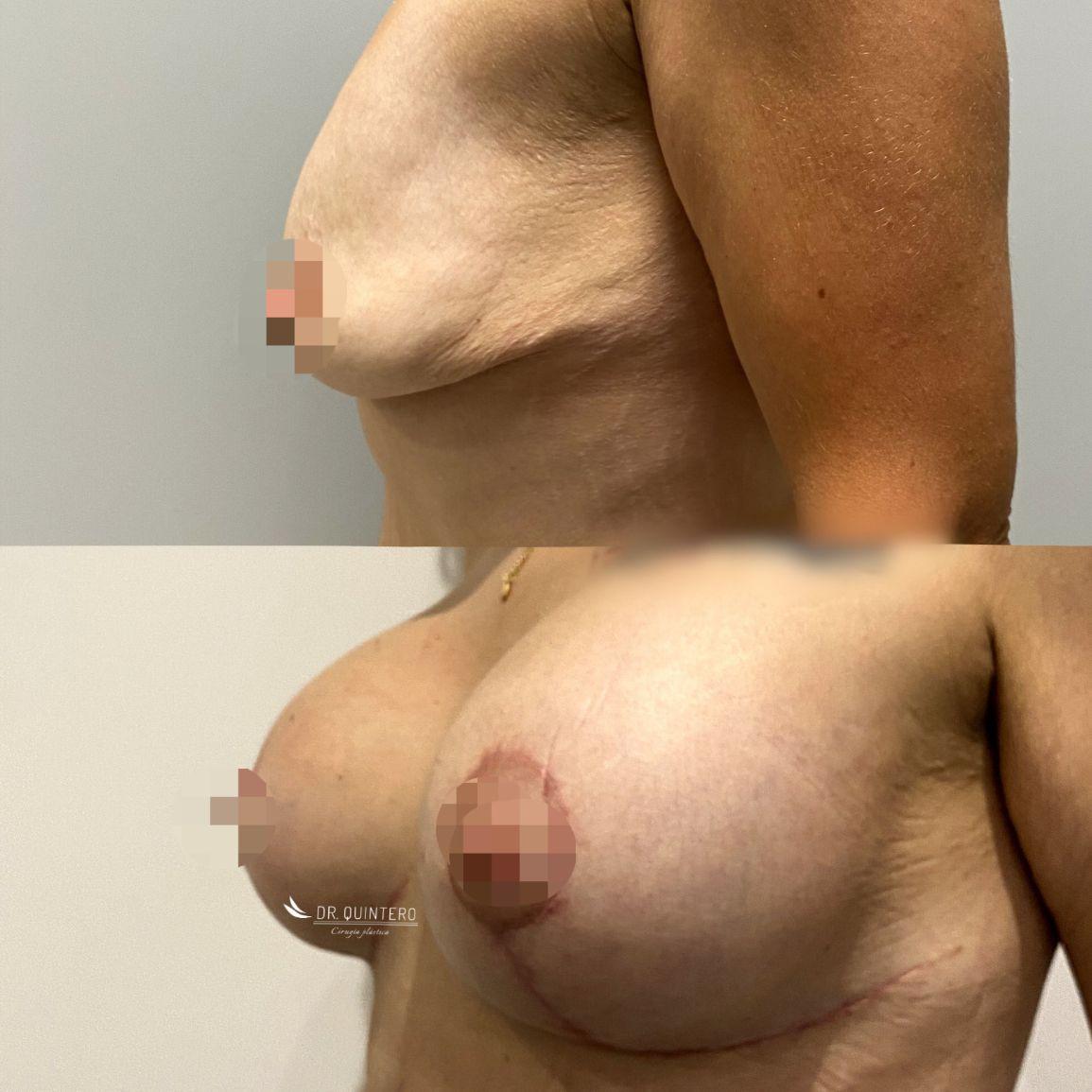 Mastopexia antes y después